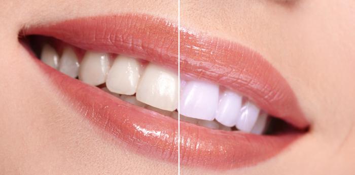 Albire Dinti - Arra Dental Clinique
