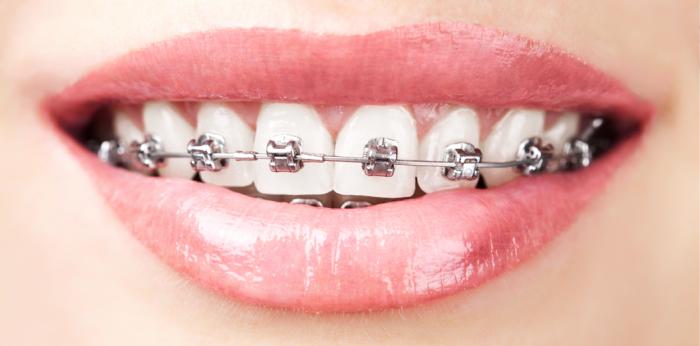 Ortodontie - Arra Dental Clinique