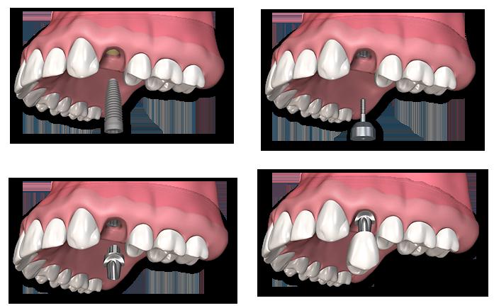 Implanturi dentare – 5 lucruri interesante despre acestea