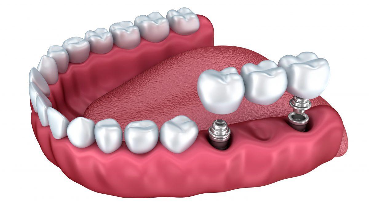 Implanturi dentare – Tot ce trebuie sa stii despre acestea