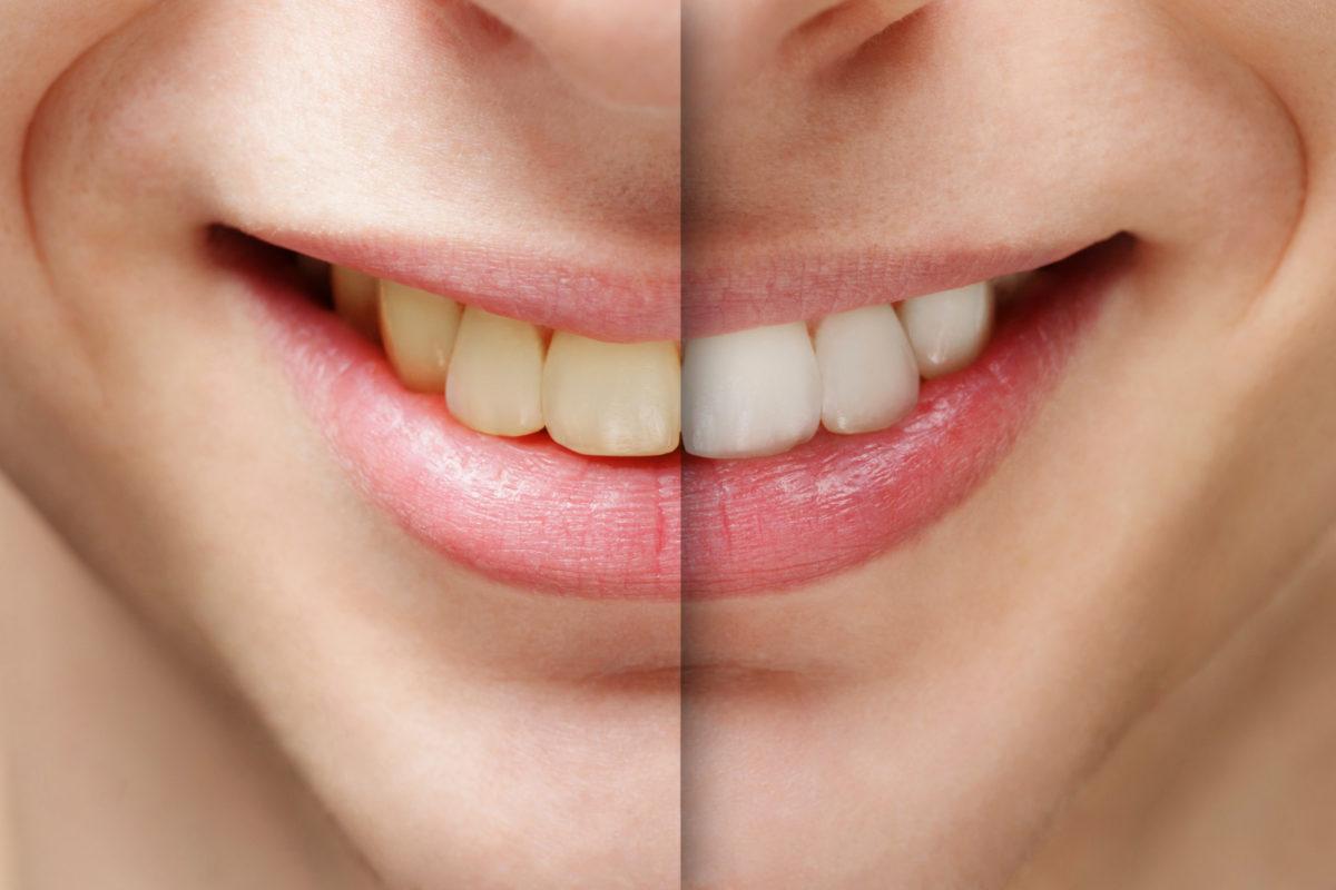 ALBIREA DENTARĂ – Estetica dentară