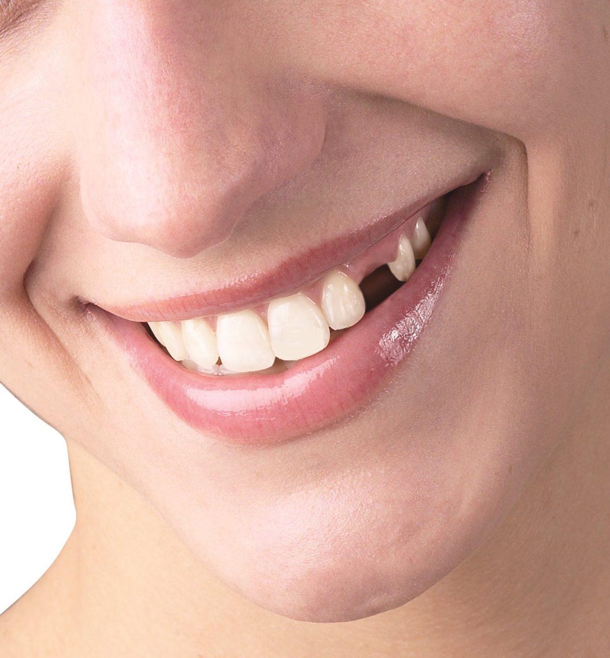 5 efecte nebănuite produse de lipsa unuia sau a mai multor dinți